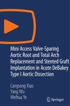 Mini Access Valve-Sparing Aortic Root and Total Arch Replacement and Stented Graft Implantation in Acute DeBakey Type I Aortic Dissection