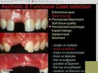 Ridge and Sinus Grafting In Implant Dentistry
