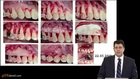 Corticotomy-Assisted Orthodontics