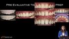 Predictable Anterior Aesthetics Smile Design to Development