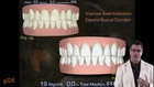 Esthetic and Functional Dentistry: Conservative Smile Enhancement