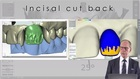 How to Create High End and Esthetic Results in Implantology using the Digital Workflow and Interdisciplinary Planning (From a Master Dental Technician Viewpoint)